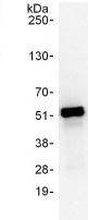 Immunoprecipitation - Anti-PSMC3 antibody (ab125164)