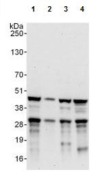 Western blot - Anti-USF2 antibody (ab125184)