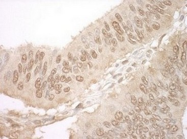 Immunohistochemistry (Formalin/PFA-fixed paraffin-embedded sections) - Anti-JMY antibody (ab125190)