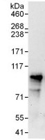 Immunoprecipitation - Anti-Cenexin1/ODF2 antibody (ab125192)