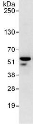 Immunoprecipitation - Anti-RING1 antibody (ab125193)
