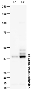 Western blot - Anti-CCR7 antibody (ab125205)