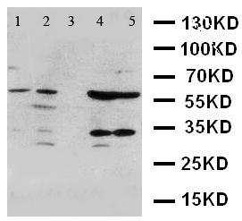 Western blot - Anti-ANGPTL1 antibody (ab125216)