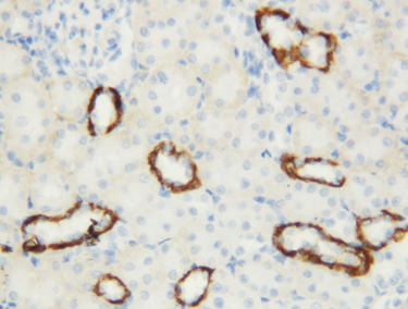 Immunohistochemistry (Formalin/PFA-fixed paraffin-embedded sections) - Anti-Aquaporin 3 antibody (ab125219)