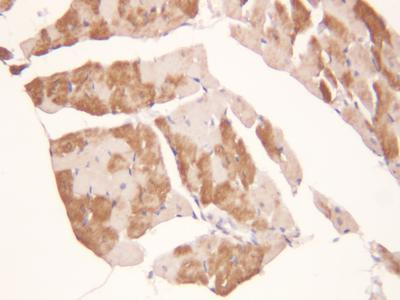Immunohistochemistry (Formalin/PFA-fixed paraffin-embedded sections) - Anti-ADAMTS2 antibody (ab125226)