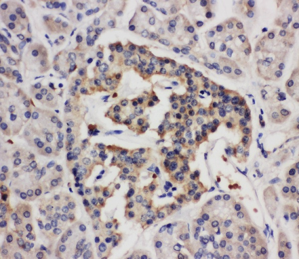Immunohistochemistry (Formalin/PFA-fixed paraffin-embedded sections) - Anti-Angiogenin antibody (ab125231)