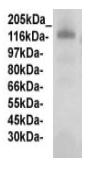 Western blot - Anti-Fibulin 2 antibody (ab125256)