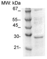Western blot - Anti-TPD52 antibody (ab125270)