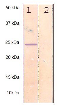 Western blot - Anti-RhoA (phospho S188) antibody (ab125275)