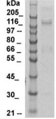 Western blot - Anti-ORP150 antibody (ab125281)