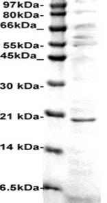 Western blot - Anti-CDKN2A/p14ARF antibody (ab125282)
