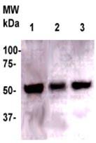 Western blot - Anti-Legumain antibody (ab125286)
