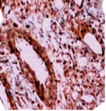 Immunohistochemistry (Formalin/PFA-fixed paraffin-embedded sections) - Anti-Legumain antibody (ab125286)