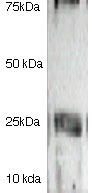 Western blot - Anti-Claudin 2 antibody (ab125293)