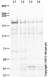 Western blot - Anti-Topoisomerase II beta antibody (ab125297)