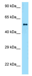Western blot - Anti-ZBTB37 antibody (ab125324)