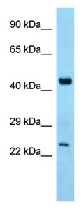 Western blot - Anti-ABHD12 antibody (ab125325)