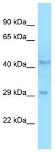 Western blot - Anti-B4GALT3 antibody (ab125328)
