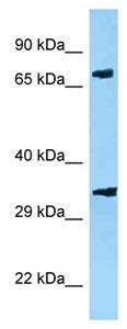 Western blot - Anti-PJA2 antibody (ab125330)