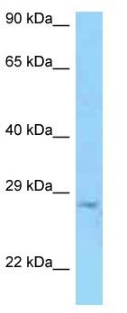 Western blot - Anti-TRY1 antibody (ab125334)
