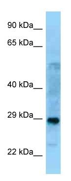 Western blot - Anti-PROSC antibody (ab125339)