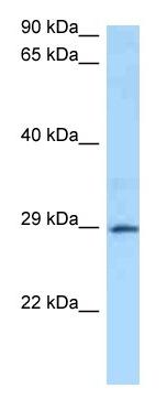 Western blot - Anti-GSTA4 antibody (ab125340)