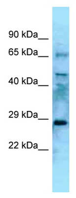 Western blot - Anti-EYA4 antibody (ab125341)