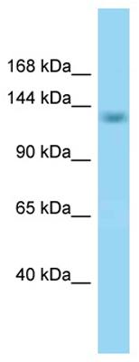 Western blot - Anti-RBM16 antibody (ab125342)