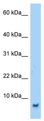 Western blot - Anti-SMR3B antibody (ab125343)