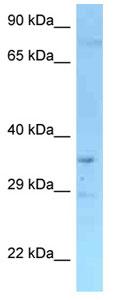 Western blot - Anti-Rffl antibody (ab125344)