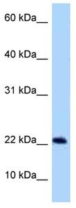 Western blot - Anti-RSB66 antibody (ab125345)