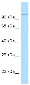 Western blot - Anti-ADAM29 antibody (ab125346)