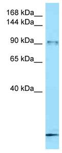 Western blot - Anti-FBXO11 antibody (ab125349)