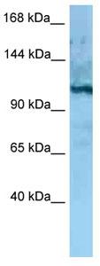Western blot - Anti-MORC4 antibody (ab125350)