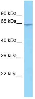 Western blot - Anti-C10orf68 antibody (ab125359)