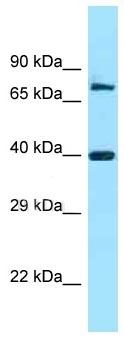 Western blot - Anti-FAM54A antibody (ab125360)