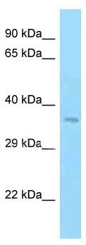 Western blot - Anti-Manic Fringe antibody (ab125361)
