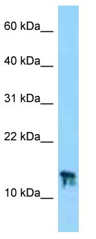 Western blot - Anti-C9orf25 antibody (ab125364)