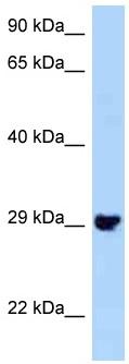 Western blot - Anti-PLEKHF2 antibody (ab125384)
