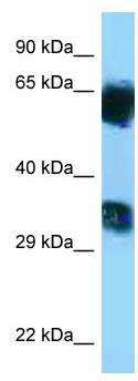 Western blot - Anti-MGAT5B antibody (ab125403)