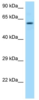Western blot - Anti-TCP1 alpha antibody (ab125407)