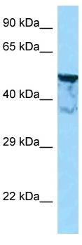 Western blot - Anti-KIAA1598 homolog antibody (ab125408)