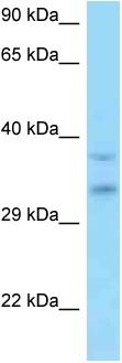 Western blot - Anti-C9orf30 antibody (ab125413)