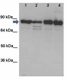 Western blot-Anti-Solute carrier family 22 member 5 antibody(ab125416)