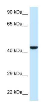 Western blot - Anti-GMPPB antibody (ab125421)
