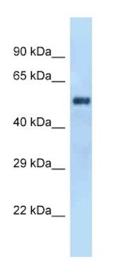 Western blot - Anti-GAL3ST4 antibody (ab125423)