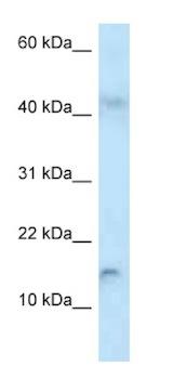 Western blot - Anti-RBP2 antibody (ab125425)