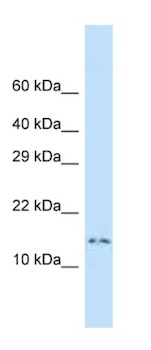 Western blot - Anti-Dynein light chain antibody (ab125428)