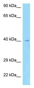 Western blot - Anti-AADACL3 antibody (ab125431)