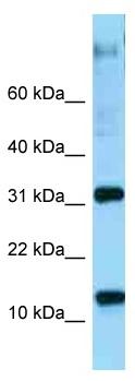 Western blot - Anti-RPL22 antibody (ab125432)